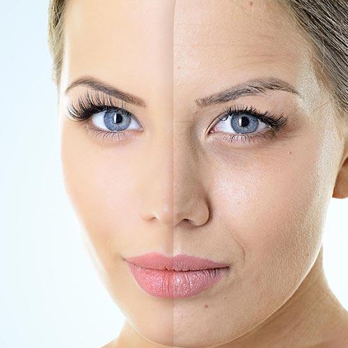 Hautverjüngung und Anti-Aging