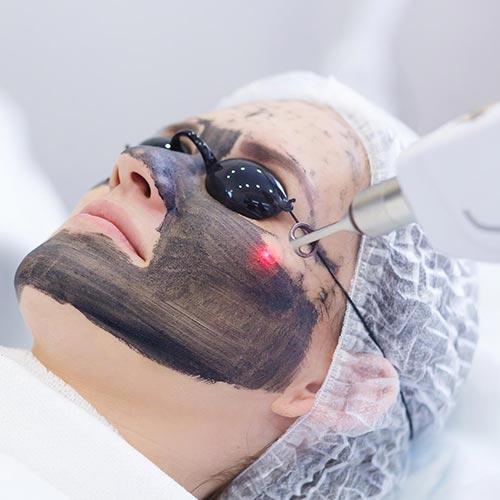 Hollywood Carbon Peeling